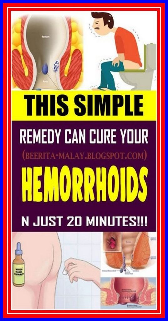 THIS SIMPLE REMEDY CAN CURE YOUR HEMORRHOIDS IN JUST 20 MINUTES !!!
