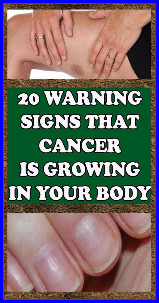 20 Warning Signs that Cancer is Growing in Your Body