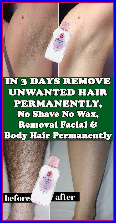 REMOVE UNWANTED HAIR PERMANENTLY IN THREE DAYS, NO SHAVE NO WAX, REMOVAL FACIAL & BODY HAIR PERMANENTLY