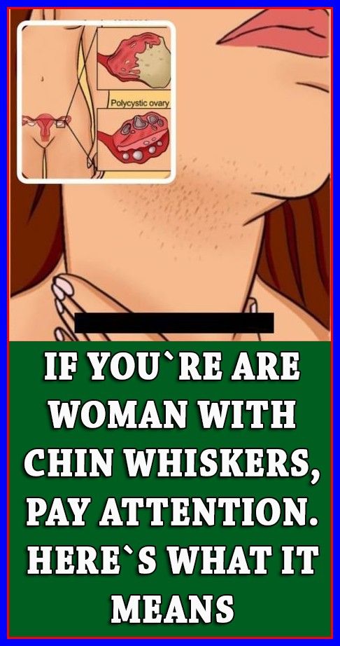 IF YOU'RE A WOMAN WITH CHIN WHISKERS, PAY ATTENTION. HERE'S WHAT IT MEANS!