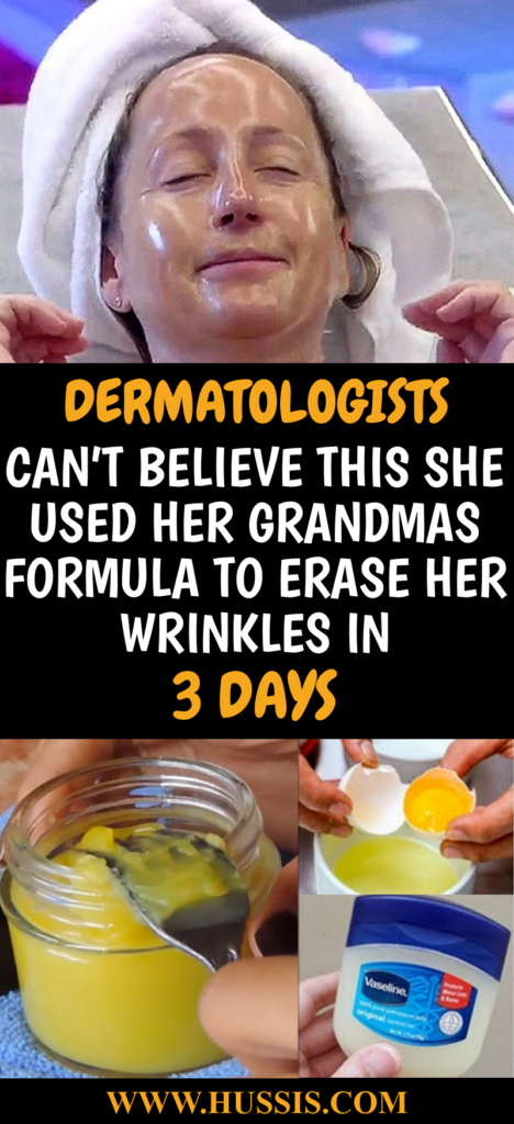 DERMATOLOGISTS CAN T BELIEVE THIS SHE USED HER GRANDMAS FORMULA TO ERASE HER WRINKLES IN 3 DAYS